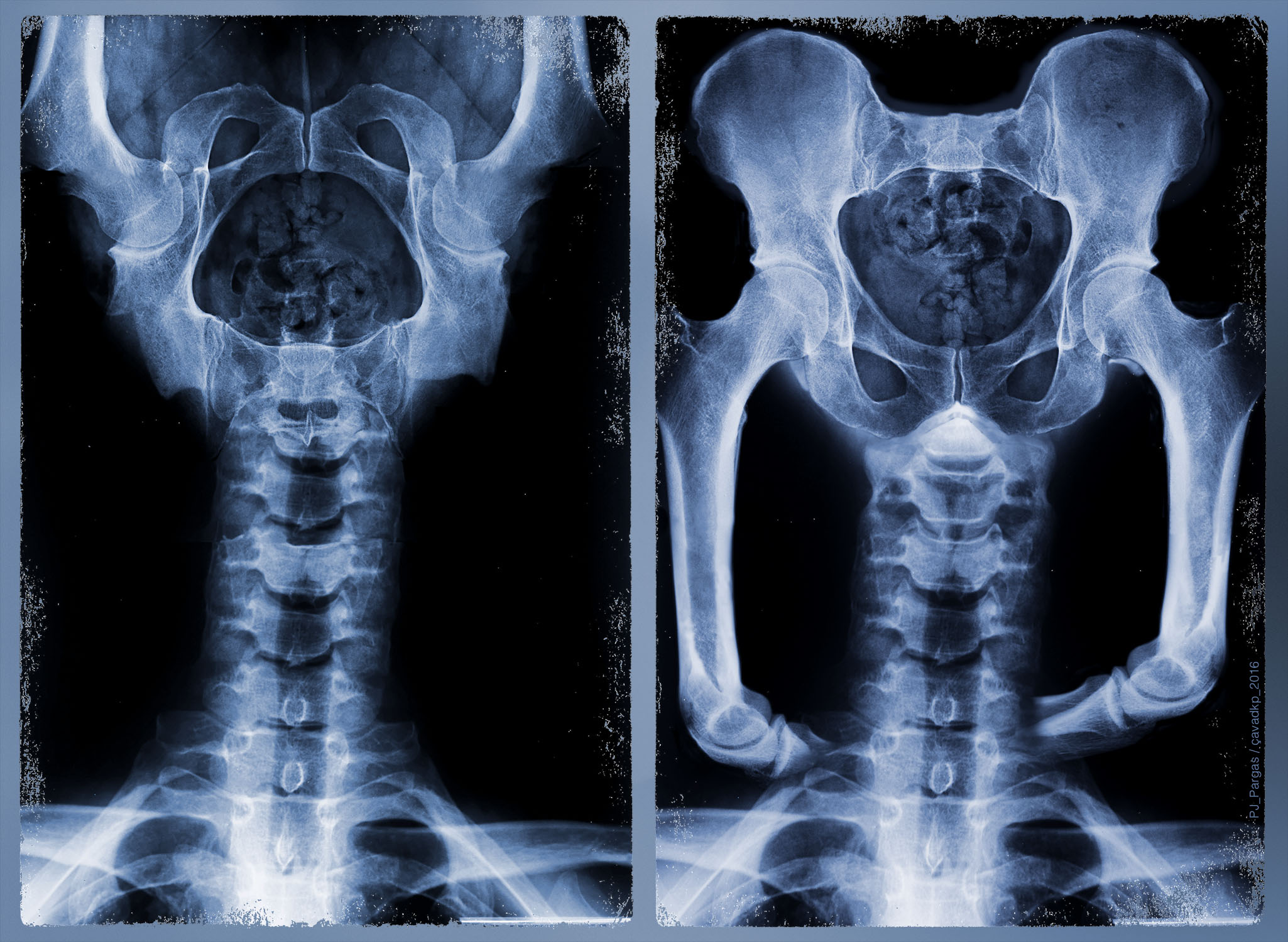 SkeletonExperience